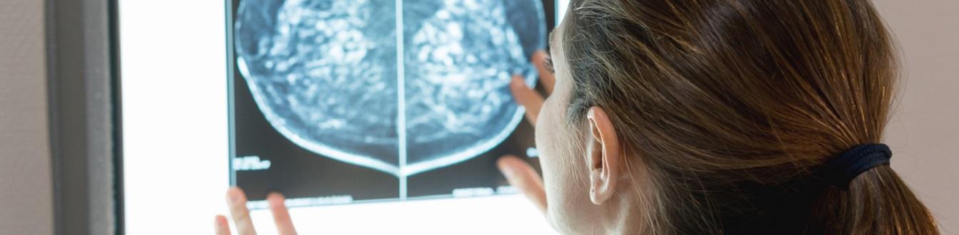 VGZ vertelt u in welke ziekenhuizen u binnen 1 dag de uitslag van borstonderzoek krijgt